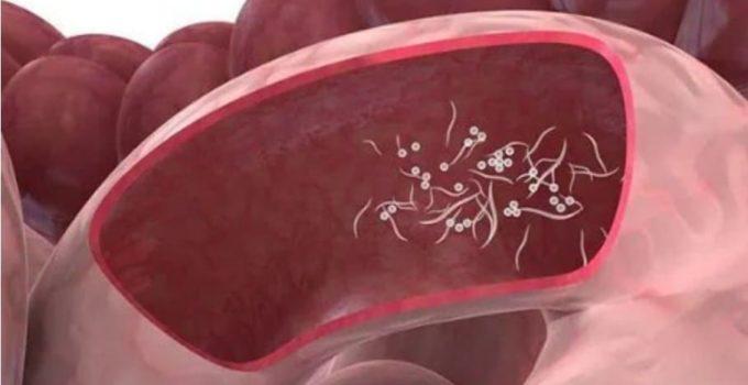 Como se Contagia Quistes de Blastocystis Hominis - Prevención y Tratamiento