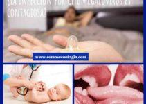 Como se contagia citomegalovirus y sus síntomas