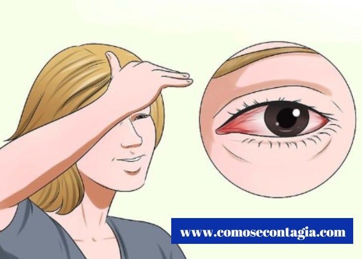 Como se contagia la conjuntivitis a otra persona y como prevenirla