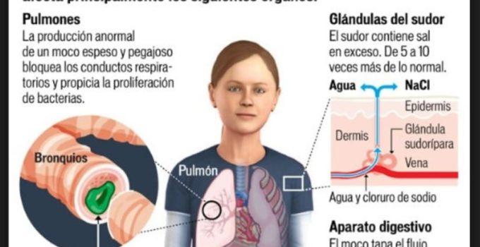 Como se contagia la fibrosis quística y sus síntomas
