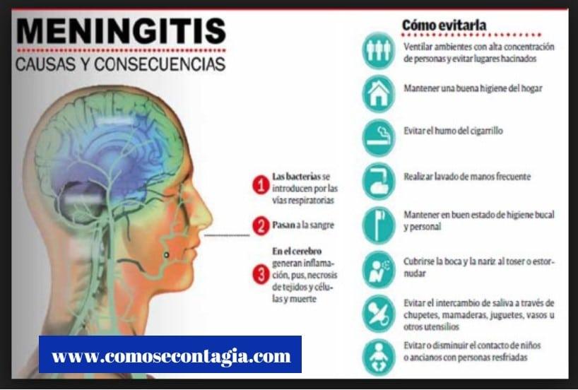 Como se contagia meningitis bacteriana – causas y síntomas
