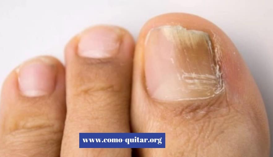 Como se contagia onicomicosis - tratamiento