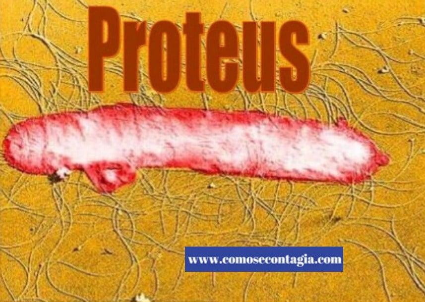 Como se contagia proteus ox 19 positivo y sus consecuencias