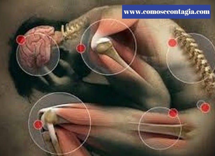 Como se contagia proteus ox-19 sintomas y consecuencias