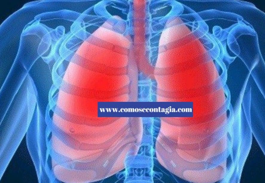 Como se contagia tuberculosis extra pulmonar-Tipos y tratamiento