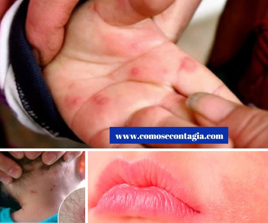Como se contagian las enfermedades de la piel