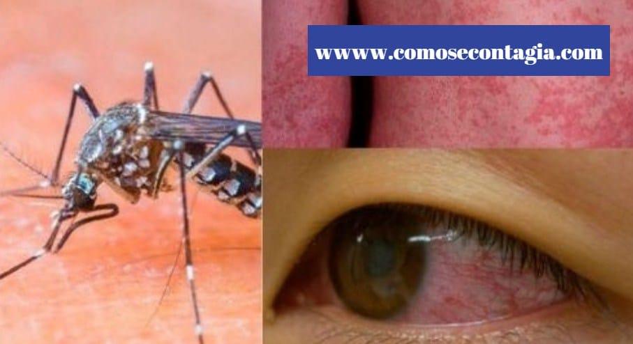 Como se contagia el dengue