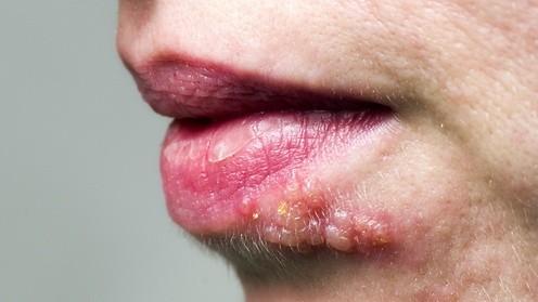 como se contagia el herpes