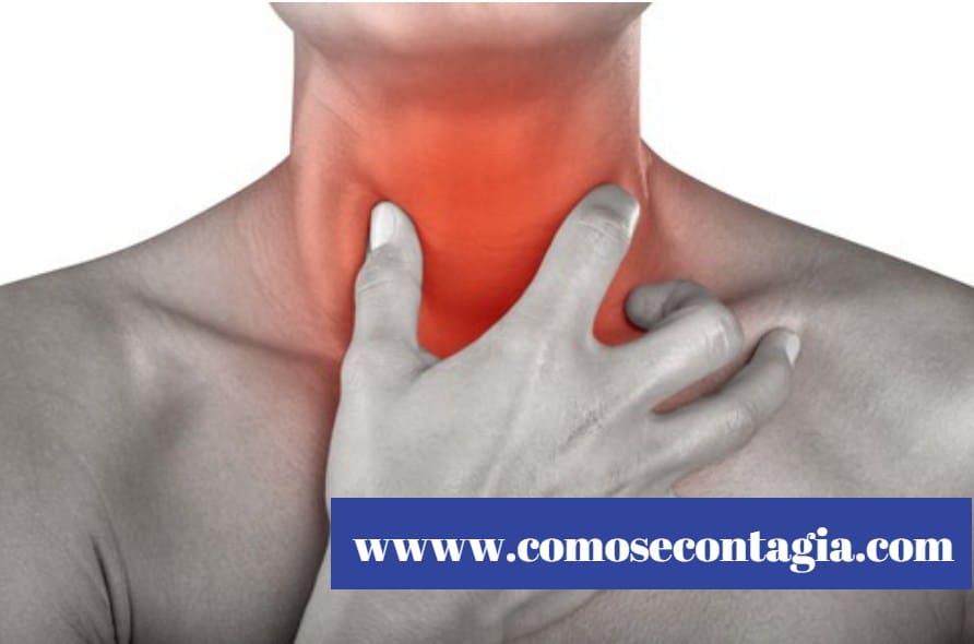 Como se contagia la mononucleosis