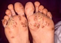 como se contagia la sifilis