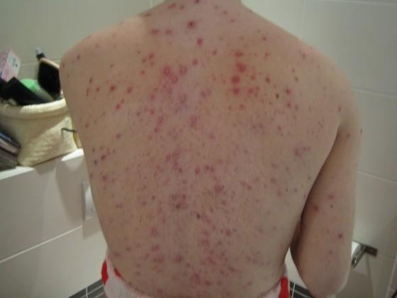 como se contagia la varicela